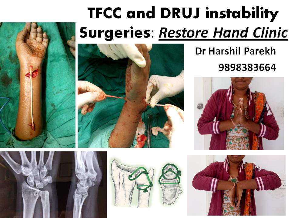 TFCC and DRUJ instability Surgeries