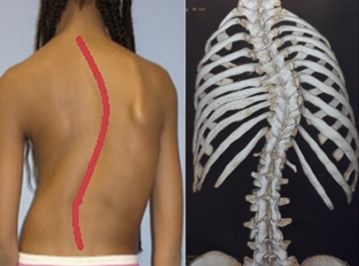 Common spine problems-symptoms